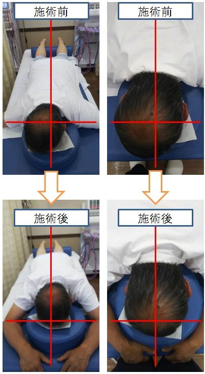 頭蓋骨矯正のビフォアアフター